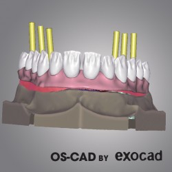 OS-CAD BY EXOCAD - IMPLANT