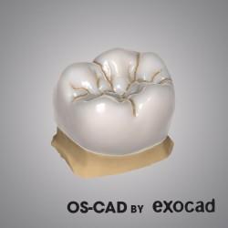 CROWN & BRIDGE - OS-CAD BY EXOCAD