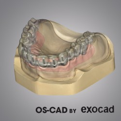 BARRE  IMPLANTARI - OS-CAD BY EXOCAD