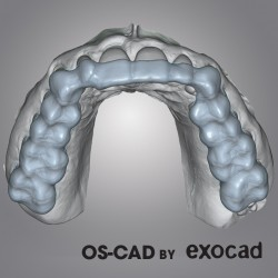 BITE SPLINT - OS-CAD  BY EXOCAD
