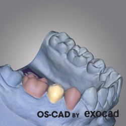 PROVISIONAL - OS-CAD  BY EXOCAD