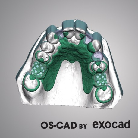 PROTHESE PARTIELLE - OS-CAD  BY EXOCAD