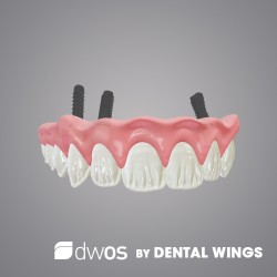 Implant prothetics BY DWOS