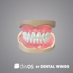 Prothèses complètes BY DWOS