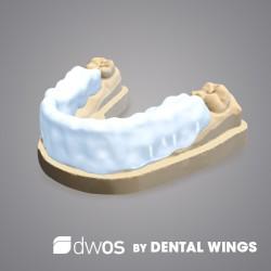Bite Splints BY DWOS