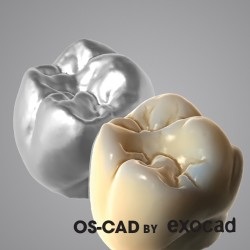 TRU-SMILE - OS-CAD BY EXOCAD